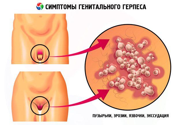 nemi herpesz és erekció