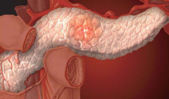 Fibrózis és a prosztatában