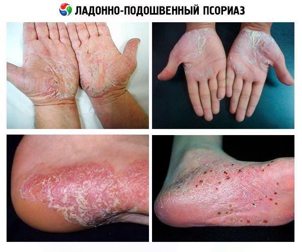 pikkelysömör kezelése psorkutan)