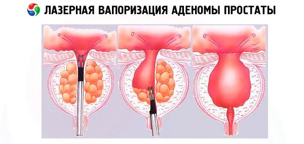 Lézer hiperplázia prosztata A rossz vizeletes prosztatitis kezelése