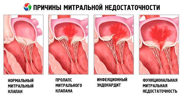 Mitrális szelep prolapsus és merevedés. Gyógyszerek béta-blokkolók és azok használata