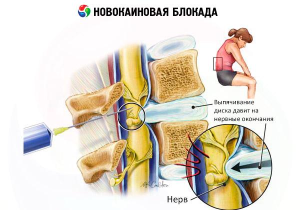 gyógyszer a vállízület ragasztásainak törésére