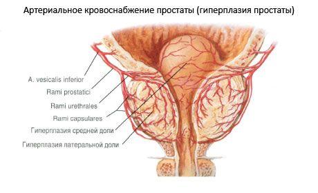 A Calcinate egy prosztata fibrózis A prosztatitis hatása a belekben
