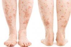 vörös foltok jelentek meg a lábak lábán a láb duzzanata és vörös foltok