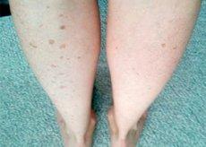 gélek a lábak ízületeihez
