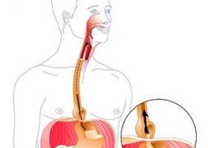 a gyomor eróziója anthelmintikus gyógyszerek legfeljebb egy évig