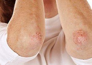 A bőr kérges és pikkelyes fotó