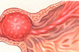 Prostatitis és polipok