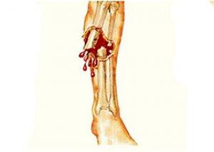 A bokaízület arthrosisának deformálása - okai és tünetei, gyógyhatású és népi terápia - Könyök
