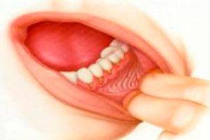 szájüregi rák tnm magas onkogén kockázattal járó papilloma