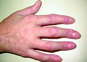 a vállízület artrózisos köszvényízületi gyulladás