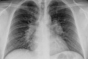 a tuberkulózis súlycsökkenést okoz